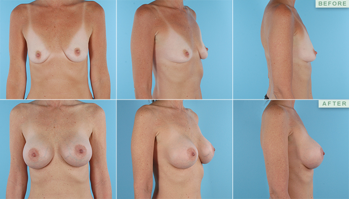 New Jersey breast augmentation