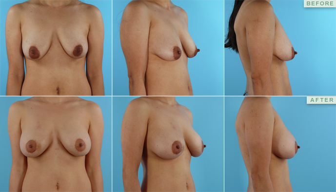 breast lift pictures. Breast Lift With Implants