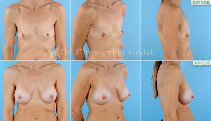 Saline Breast Augmentation New Jersey - Christopher Godek, MD, FACS