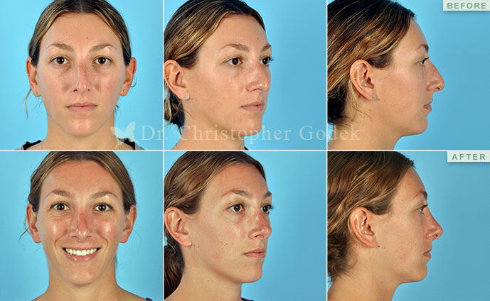 New Jersey rhinoplasty