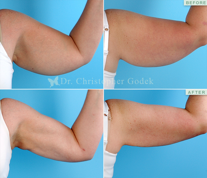 Arm Contouring New Jersey - Chrisptoher Godek, MD, FACS