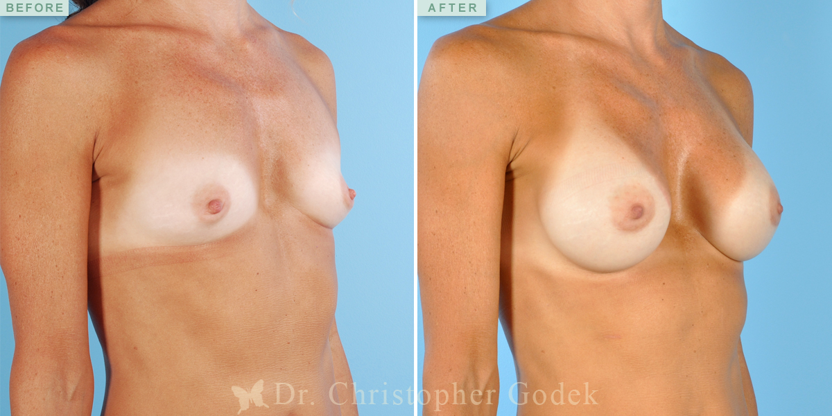 Saline Breast Augmentation New Jersey – Chrisptoher Godek, MD, FACS 14