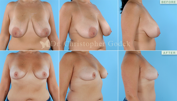 Breast Lift New Jersey - Chrisptoher Godek, MD, FACS