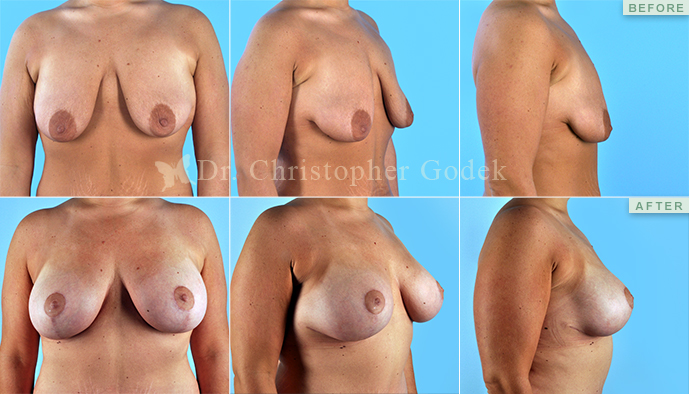 Breast Implants New Jersey - Chrisptoher Godek, MD, FACS