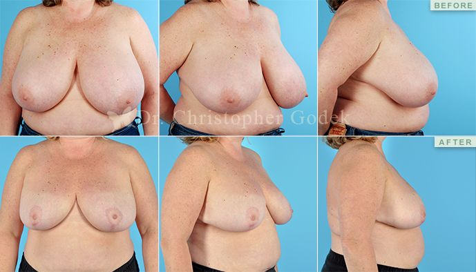 Breast Reduction New Jersey - Chrisptoher Godek, MD, FACS