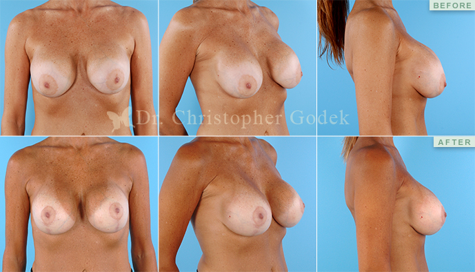 Breast Revision New Jersey - Chrisptoher Godek, MD, FACS