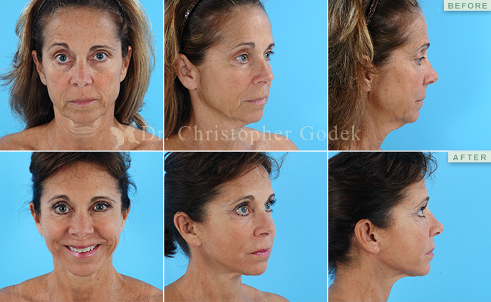 Facelift New Jersey - Christopher Godek, MD, FACS