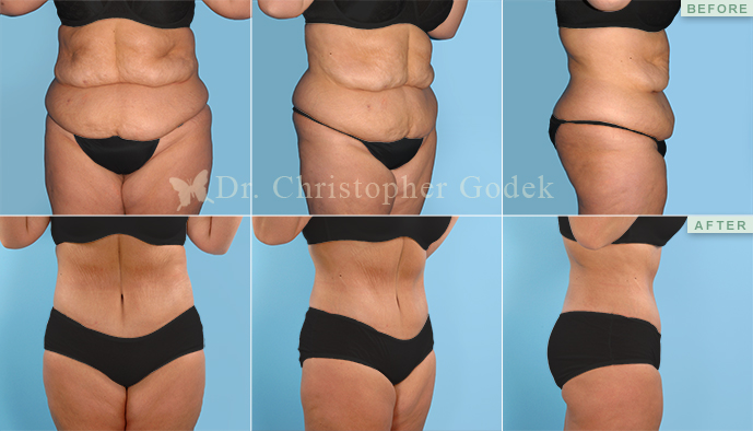 Tummy Tuck, New Jersey - Chrisptoher Godek, MD, FACS