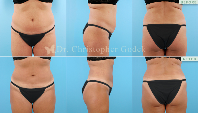 Liposuction New Jersey - Chrisptoher Godek, MD, FACS