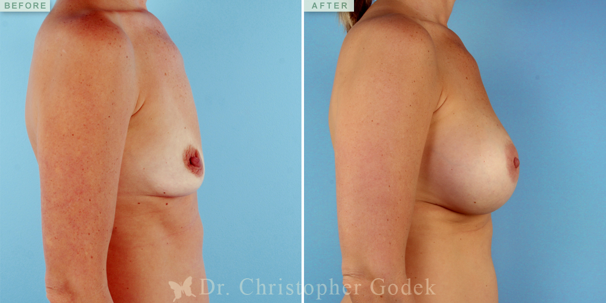 Saline Breast Augmentation New Jersey – Chrisptoher Godek, MD, FACS