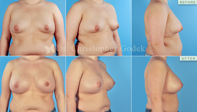 Silicone Breast Augmentation New Jersey - Christopher Godek, MD, FACS