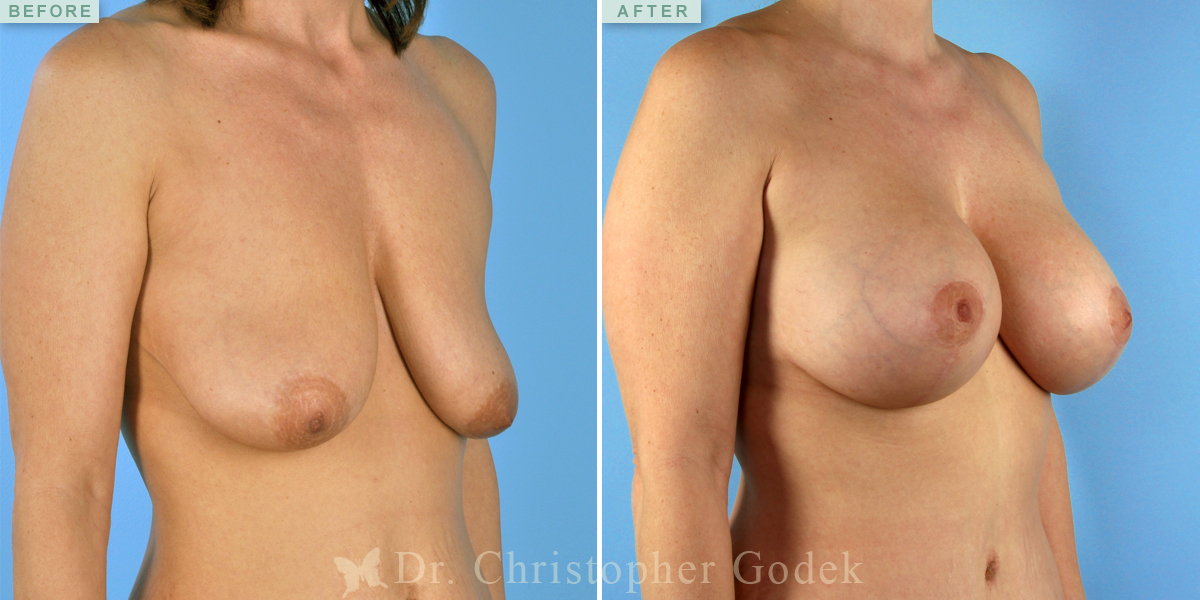 Breast Implants H Cup Doctor Answers QampA Tips  RealSelf