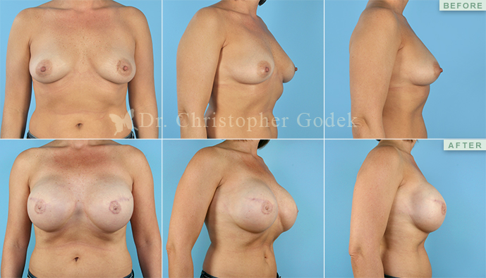 Breast Reconstruction New Jersey - Chrisptoher Godek, MD, FACS